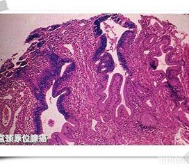 外阴纤维瘤