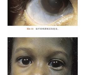 单纯疱疹性葡萄膜炎