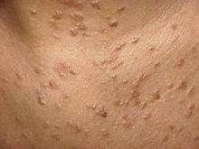 原发性高脂蛋白血症与黄瘤增生病