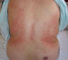 布氏杆菌病
