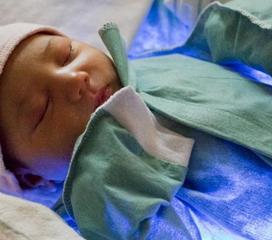 母乳性黄疸