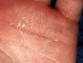 链球菌感染