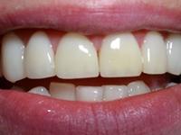 前牙深覆盖