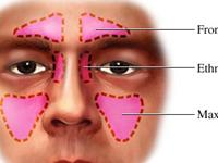 慢性单纯性鼻炎