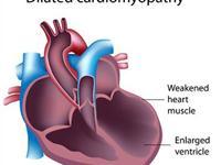 扩张型心肌病