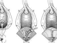 直肠阴道瘘