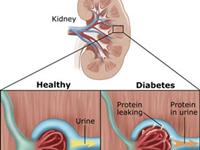 糖尿病肾病