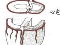 结核性心包炎