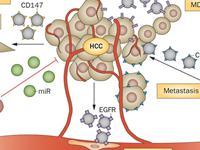 肝母细胞瘤