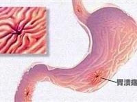 胃溃疡出血