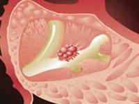 胰腺囊腺癌