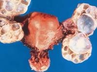 卵巢交界性肿瘤