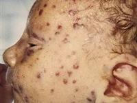 新生儿肝炎