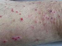 皮肤瘙痒症