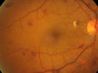 糖尿病视网膜病变