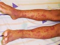 过敏性紫癜肾炎