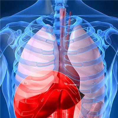 黄疸肝炎病人早期症状