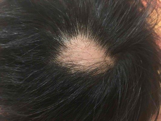 男性毛囊炎初期症状和图片