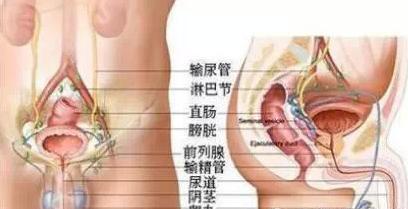 前列腺钙化