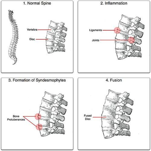 强直性脊柱炎