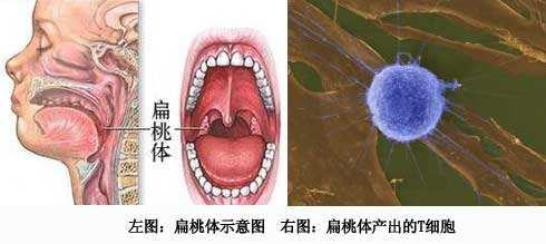 扁桃体发炎