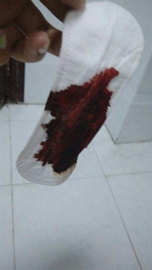 撤退性出血