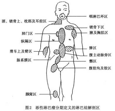 浅表淋巴结肿大 39医疗图集 39健康网