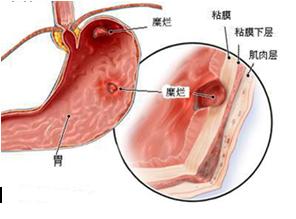 胃粘膜损伤
