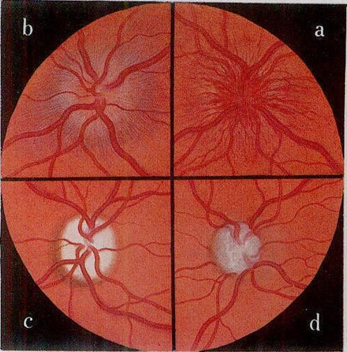 视神经萎缩