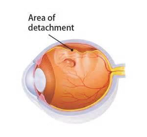 视网膜脱离