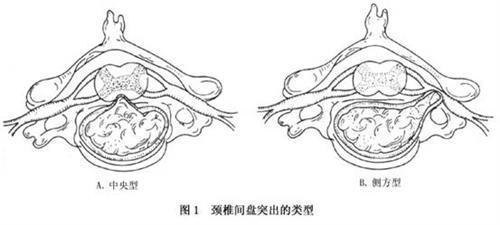颈椎间盘突出