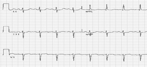 心电图异常