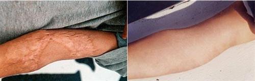凹陷性疤痕