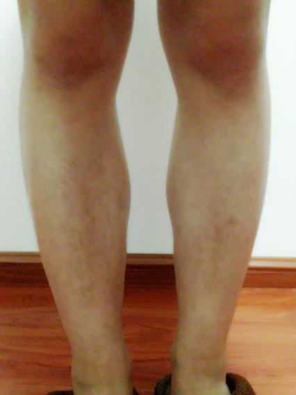 小腿肌肉萎缩