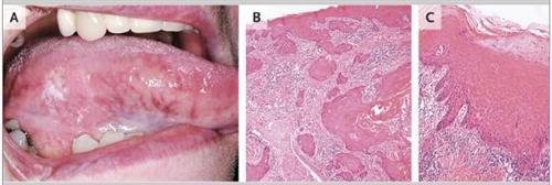 鳞状细胞癌