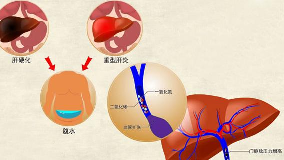 肝肾综合征