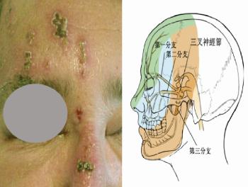鼻尖或鼻翼出现带状疱疹