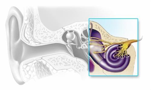 神经性耳聋