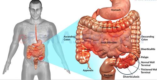 肠易激综合征