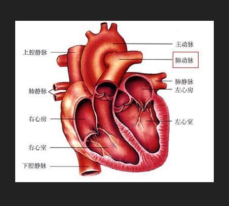 肺动脉狭窄