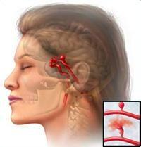 脑血管痉挛