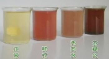 血红蛋白尿