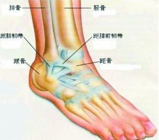 踝关节疼痛
