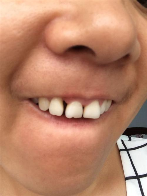 牙齿缝隙大