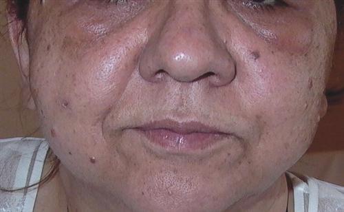 化妆品用后面部浮肿怎么办