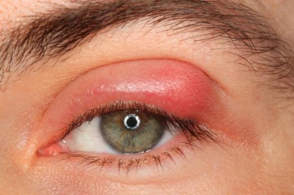水光针后针眼红色