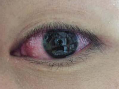 眼球充血图片_眼结构示意图睫状充血则代表眼球本身的疾病.