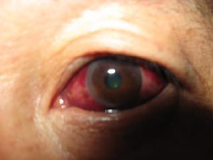 眼球出血_眼结构示意图睫状充血则代表眼球本身的疾病.