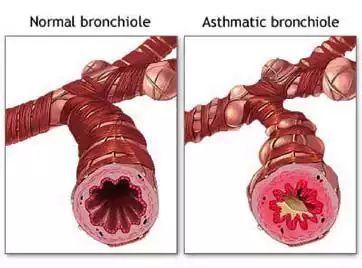 先天性喉喘鸣