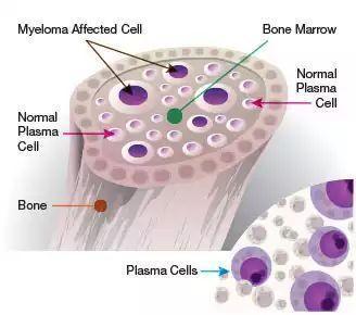 多发性骨髓瘤